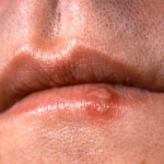 cdc_cold_sore_closeup_lips
